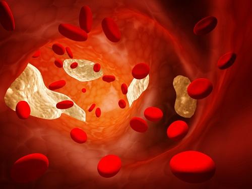 moi-lien-quan-giua-cholesterol-va-benh-tim-mach-1